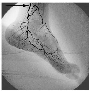 下肢动脉血管分布图图片大全 下肢动脉血管 解剖 a zip